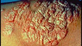 Introducción a la psoriasis