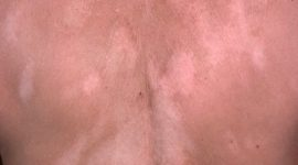 ¿Qué es el vitíligo?, (manchas blancas en la piel)