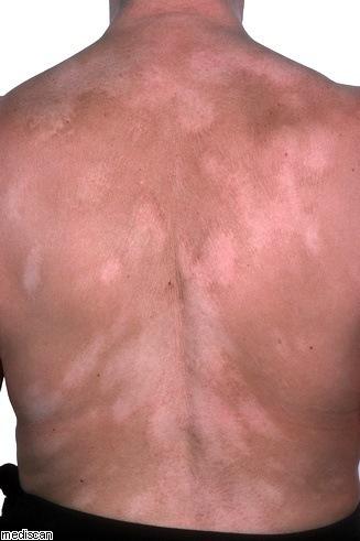 Qu es el vit ligo manchas blancas en la piel blogmedicina - Manchas blancas en la pared ...