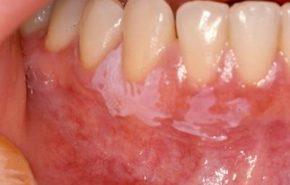 El cáncer oral, un creciente número de casos se detectan y crean alarma en los dentistas.