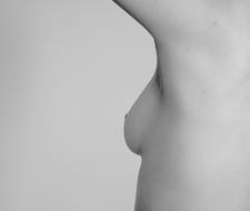 Cinco horas de ejercicio semanales… pueden disminuir hasta un 20% la posibilidad de contraer cáncer de mamas