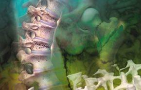 Nuevo fármaco mensual contra la osteoporosis