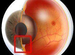 El glaucoma puede llevar a la ceguera