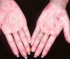 Lucha contra el lupus