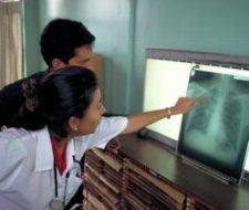 Programa: Alto a la Tuberculosis