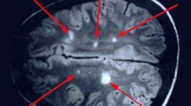 Esclerosis múltiple: nuevos avances