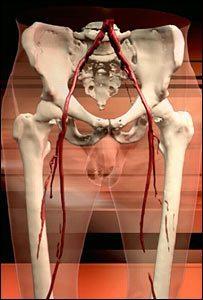 _44043636_legs_arteries_300.jpg