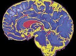 El daño cerebral adquirido y sus factores de riesgo