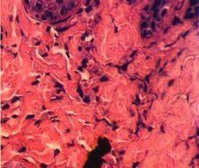 Cicatrización de heridas mediante gel derivado de las plaquetas