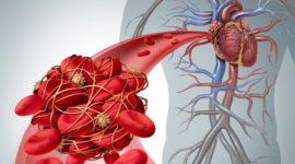 ¿Qué es la trombosis? Síntomas, causas, diagnóstico, tipos y tratamientos