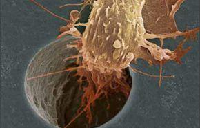 Metástasis a través del sistema linfático