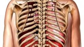 Fracturas de costillas, síntomas y tratamiento