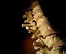 Sarcoma osteogénico