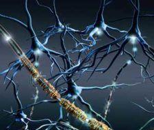 Generalidades acerca de esclerosis múltiple