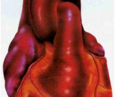 Neoplasias cardíacas, una patología poco frecuente