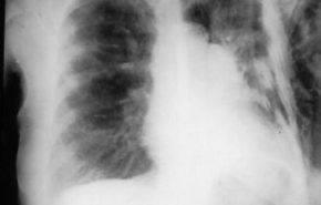 Coceptos sobre Cor pulmonale