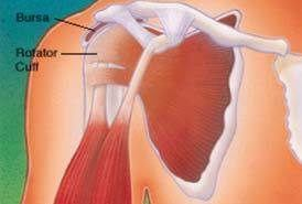 Bursitis del hombro