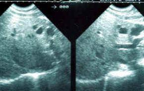 Poliquistosis hepática y renal
