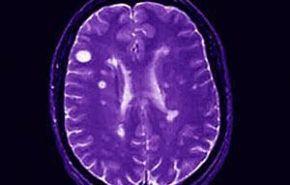 Hematomas encefálicos, epidemiología