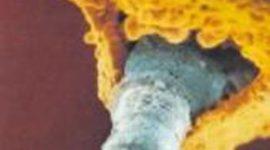 La contaminación del aire produciría mutaciones en el ADN del esperma