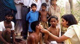 Lepra, una enfermedad difícil de combatir