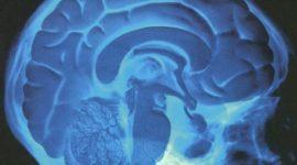 Edema cerebral post traumatismo encéfalo cranenao