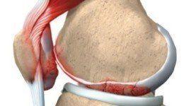 Lupus eritematoso sistémica (LES), generalidades