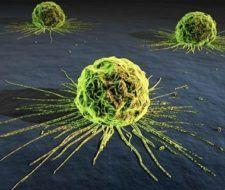 Factores predisponentes para desarrollar cáncer