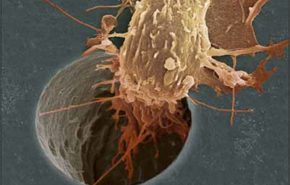 Predisposición hereditaria al cáncer