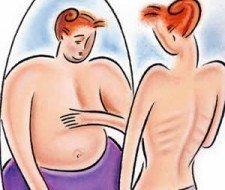 Trastornos alimentarios: bulimia