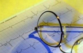 Electrocardiograma como herramienta diagnóstica para la cardiopatía isquémica