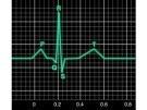 Generalidades sobre electrocardiograma