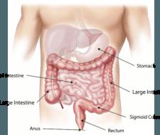 Hernia de hiato: causas, tratamiento y tipos