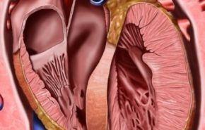 Concepto de insuficiencia cardíaca
