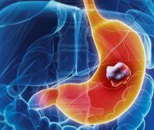 Adenocarcinoma gástrico: Causas, fases y tratamiento