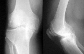 Valoración del paciente artrósico