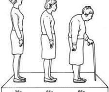 Riesgos de la osteoporosis en la menopausia