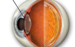 Aspectos generales sobre la cirugia del cristalino