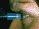 Tonometría como herramienta diagnóstica del glaucoma