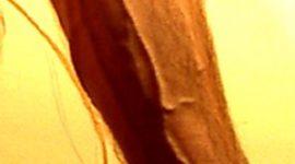 El sindrome de la vena cava superior