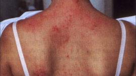 Dermatomiositis juvenil