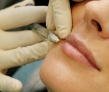 Médicos a favor del botox