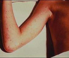 La enfermedad Púrpura  causas, sintomas y tratamiento