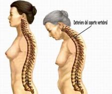 La osteoporosis, datos importantes