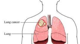 Se anuncian avances en el tratamiento del cáncer de pulmón