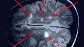 Un software nuevo de detección precoz de la esclerosis múltiple