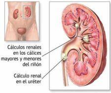 Cómo combatir los cálculos renales de forma natural