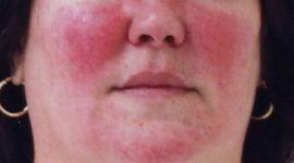 Rosácea, afección de la piel