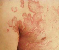 Verano complica a los que padecen psoriasis