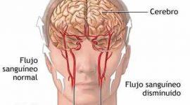 Los accidentes cerebrovasculares infantiles son una realidad